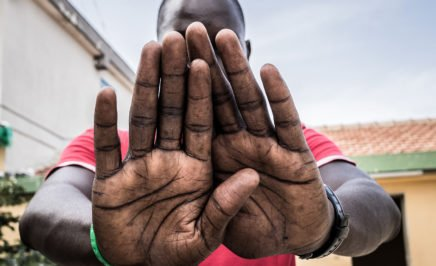 A young man from Gambia holds his hands in front of the camera, covering his face