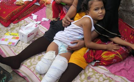 7-year-old Samia, who was injured in a bomb attack in Yemen.