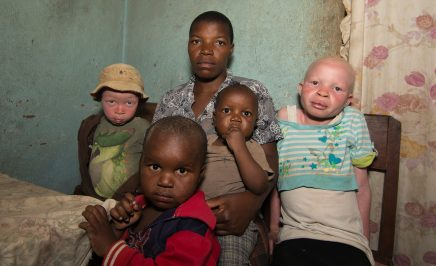 A family in Malawi with one Albino child