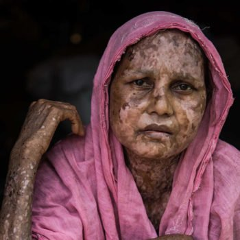 can help campaign for an end to ethnic cleansing of the Rohingya