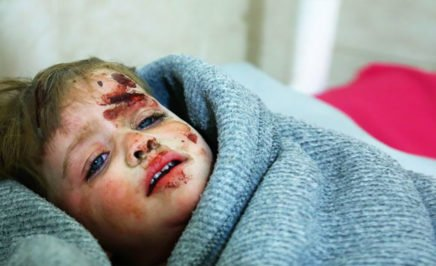 A Syrian child who was injured in shelling on the town of Misraba